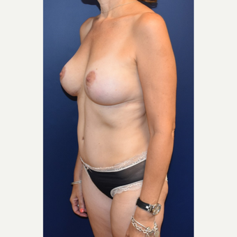 45-54 year old woman treated with Breast Lift with Implants after 3294001