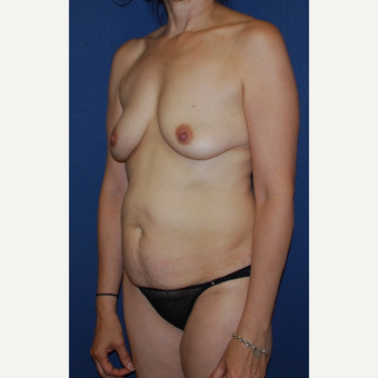 45-54 year old woman treated with Breast Lift with Implants before 3294001