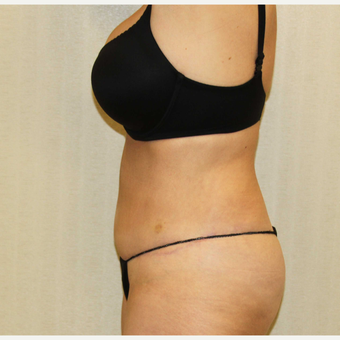 55-64 Year Old Woman Treated with Tummy Tuck to treat Excess Skin and Fat in Abdominal Region after 2988695