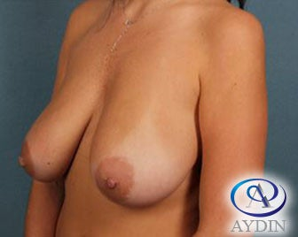 25-34 year old woman treated with Breast Lift before 3325964
