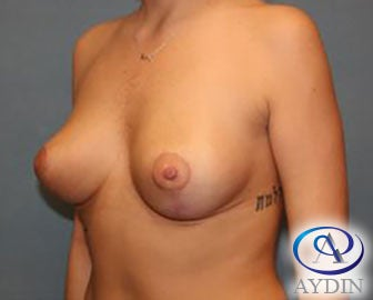 25-34 year old woman treated with Breast Lift after 3325964