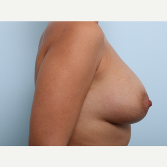 Breast Augmentation after 3345902
