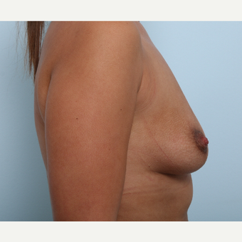 Breast Augmentation before 3345902