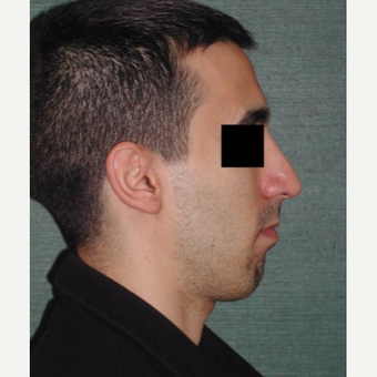 25-34 year old man treated with Rhinoplasty after 3059538