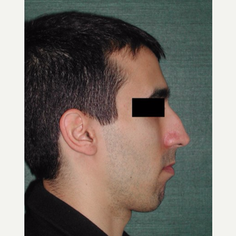 25-34 year old man treated with Rhinoplasty before 3059538