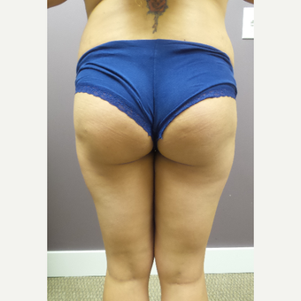 25-34 year old woman treated with Brazilian Butt Lift before 3590064