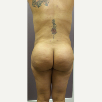 25-34 year old woman treated with Brazilian Butt Lift after 3590064