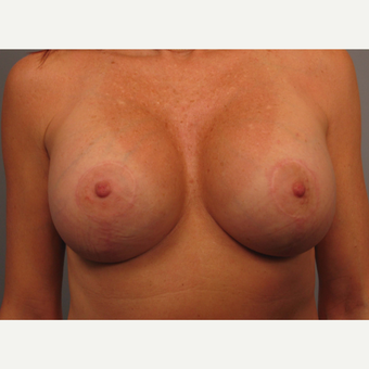 45-54 year old woman treated with Breast Lift with Implants after 3464312