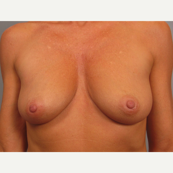 45-54 year old woman treated with Breast Lift with Implants before 3464312