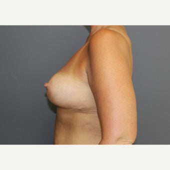 Breast Reduction 1545465