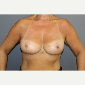 Breast Reduction after 1545465