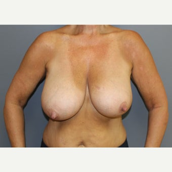 Breast Reduction before 1545465