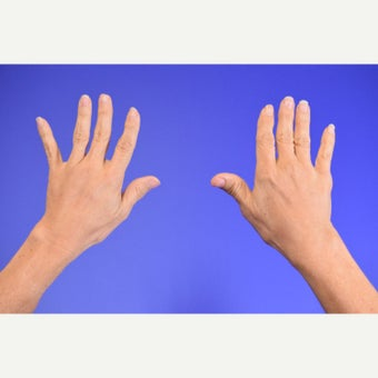 Hand rejuvenation after 2442845