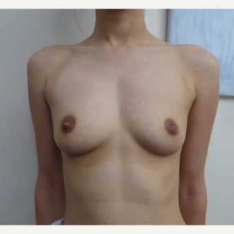 25-34 year old woman treated with Breast Augmentation before 3375307