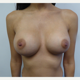 25-34 year old woman treated with Breast Augmentation after 3375307