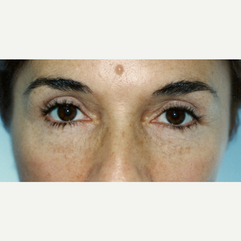55-64 year old woman treated with Eyelid Surgery after 3236466