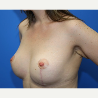 42 year old woman treated with Breast Lift with Implants after 3183792