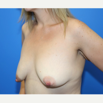 42 year old woman treated with Breast Lift with Implants before 3183792