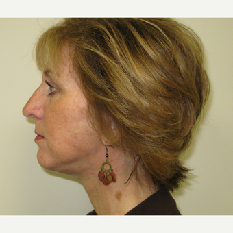 45-54 year old woman treated with Lower Face Lift after 3306165