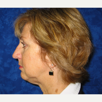 45-54 year old woman treated with Lower Face Lift before 3306165