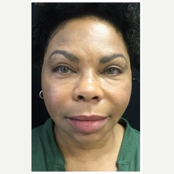 55-64 year old woman treated with Eyelid Surgery after 3218586