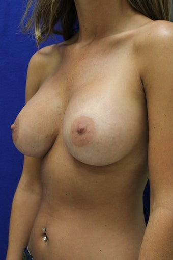 Breast Augmentation - Dual Plane 1221927