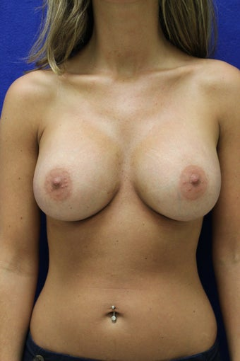 Breast Augmentation - Dual Plane after 1221927