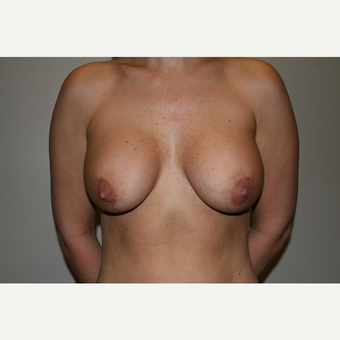 25-34 year old woman treated with Breast Augmentation after 3769364