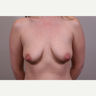 25-34 year old woman treated with Breast Augmentation before 3769364