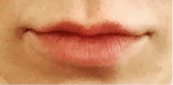 25-34 year old woman treated with Juvederm before 3762873