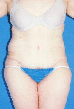 Circumferential Tuck after 863786