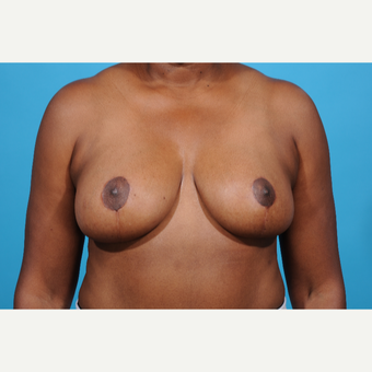 52 year old woman treated with Breast Reduction after 3097763