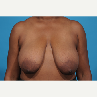 52 year old woman treated with Breast Reduction before 3097763