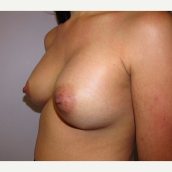 33 year old woman underwent Breast Augmentation with 380 cc silicone breast implants after 3452455