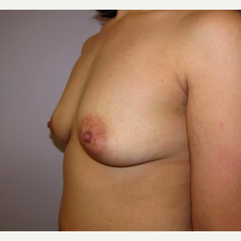 33 year old woman underwent Breast Augmentation with 380 cc silicone breast implants before 3452455