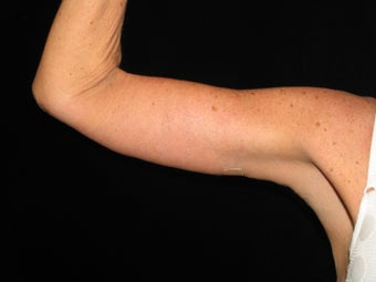 50 y.o. female after weight loss surgery, arm laxity after 1452498