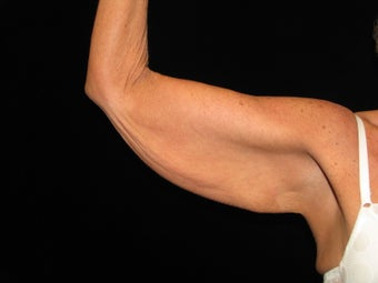 50 y.o. female after weight loss surgery, arm laxity before 1452498