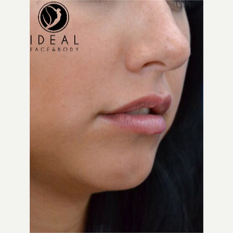18-24 year old woman treated with Juvederm before 3494811