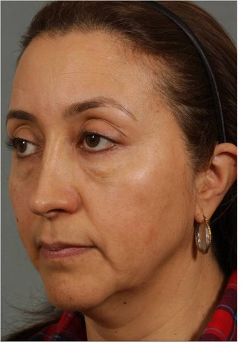 50 Year old Female with volume loss and sagging under her eyes, cheeks and jawline before 929549