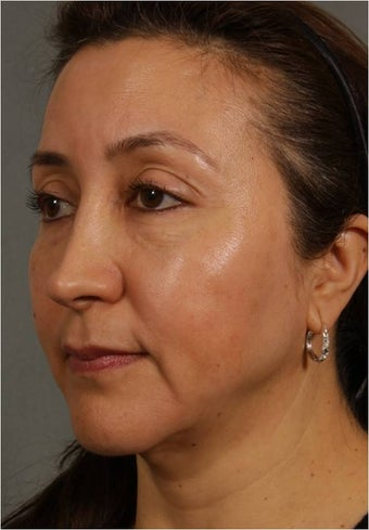 50 Year old Female with volume loss and sagging under her eyes, cheeks and jawline after 929549