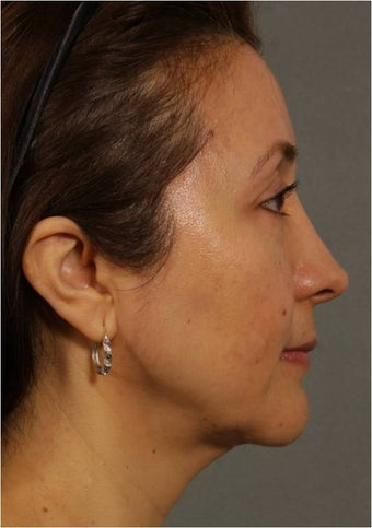 50 Year old Female with volume loss and sagging under her eyes, cheeks and jawline 929549