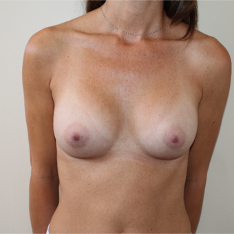 25-34 year old woman treated with Breast Augmentation after 3613597