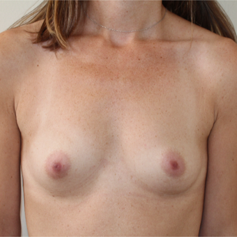 25-34 year old woman treated with Breast Augmentation before 3613597
