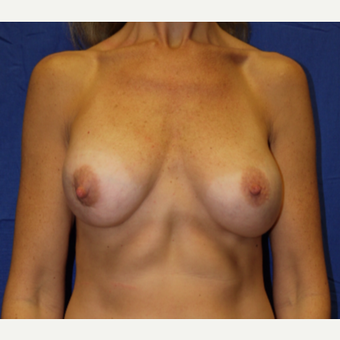 35-44 year old woman treated with Breast Implant Revision before 3002602