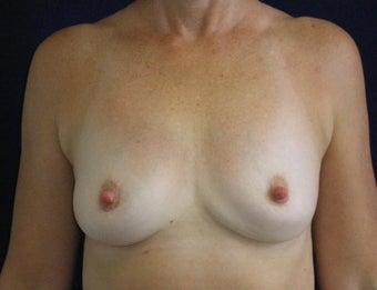46 Year Old Female, Breast Implant Removal, No Breast Lift after 1166109