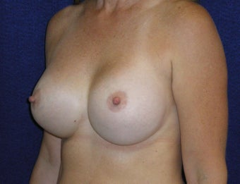 46 Year Old Female, Breast Implant Removal, No Breast Lift 1166109