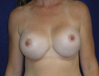 46 Year Old Female, Breast Implant Removal, No Breast Lift before 1166109