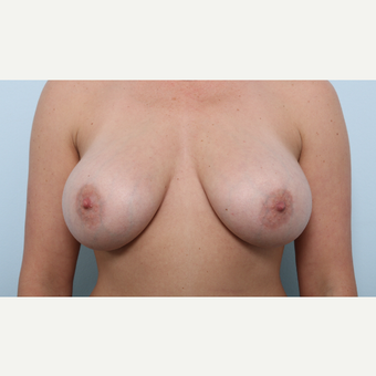 Breast Augmentation after 3345488