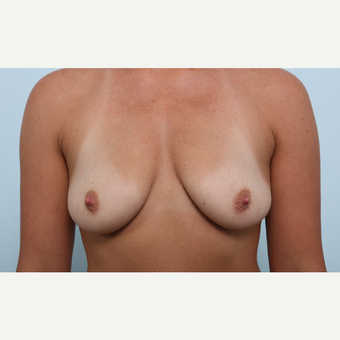 Breast Augmentation before 3345488