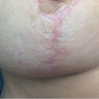 45-54 year old woman treated with Microneedling with PRP before 3524286